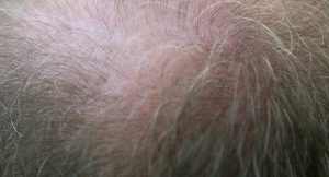 What Hair Loss Treatment Will Work Best for Everyone